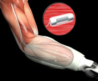 nerve attached arm prothesis Input electrodes intracortical electrodes the highest degree of spatial specificity at which one can obtain neural firing rates is at the level of individual neurons.