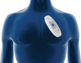 Medtronic-SEEQ